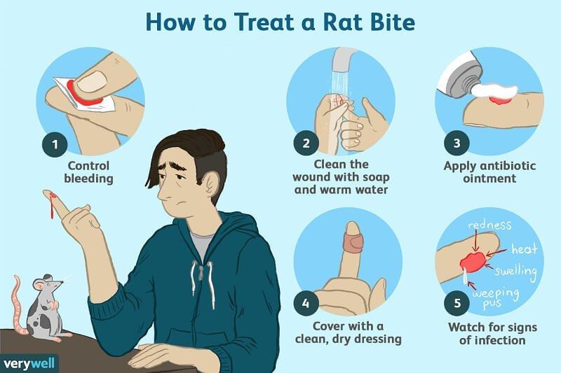 how to treat rat bites